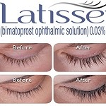 Latisse - RX Only - Call to Order